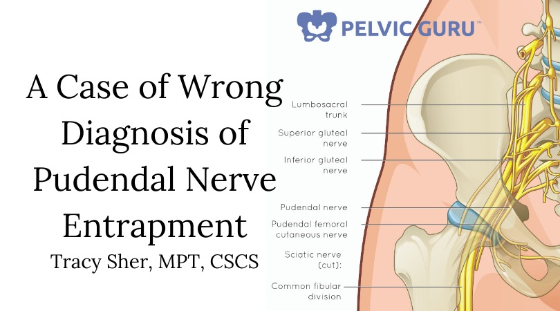 A Case of Wrong Diagnosis of Pudendal Nerve Entrapment (1)